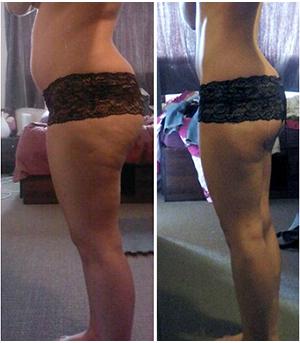 фото до и после за 2 недели похудения